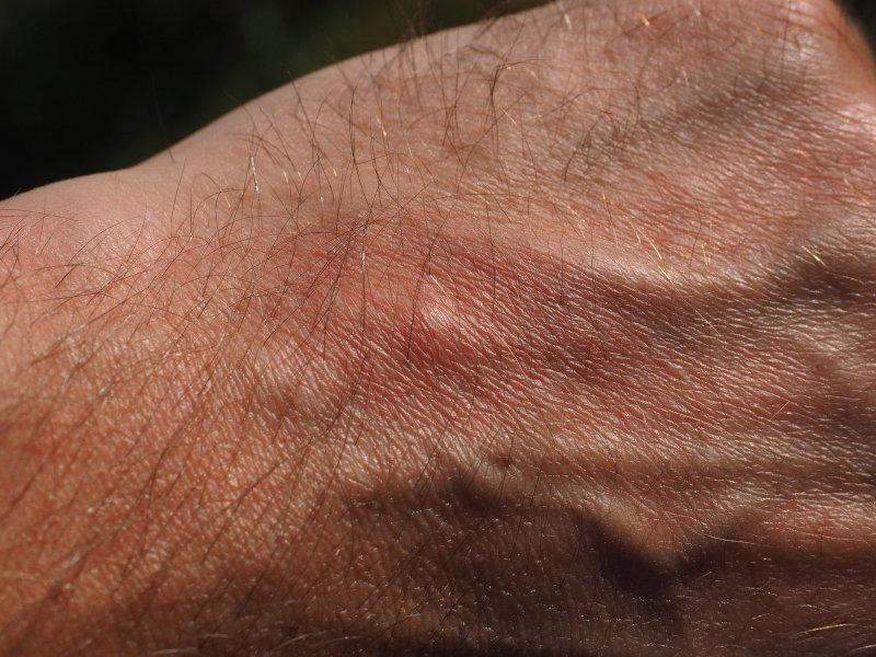 Mückenstich auf Hand